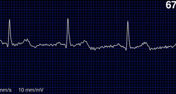 A ECG report as seen on an iPhone