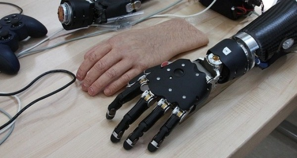 A prosthetic limb and it's supporting components laid out on a table
